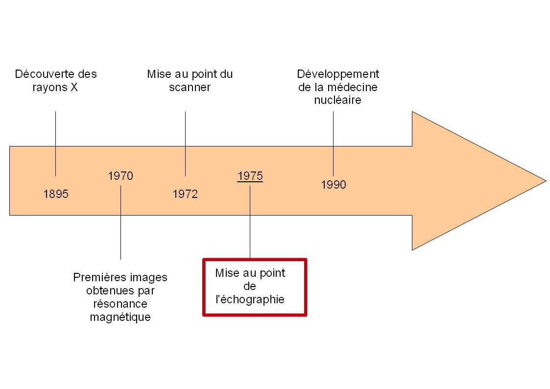 histoire échographie